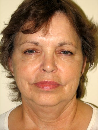 Natural Facelift and Necklift before 570610