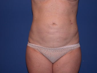 Abdominal Liposculpture after 48608