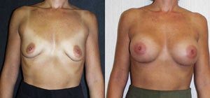 Breast augment before 119324
