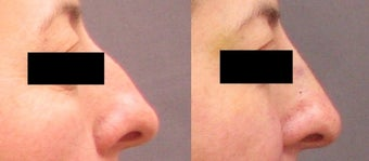 Non Surgical Nose Job before 261550