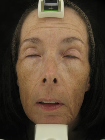 Fraxel Dual 1927 for Hyperpigmentation and wrinkles before 229146