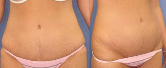 Tummy Tuck after 98606