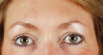 Endoscopic brow lift and blepharoplasty after 240871