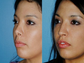 Revision rhinoplasty 395565