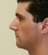 Rhinoplasty revision before 380423