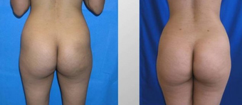 Butt Augmentation before 256432