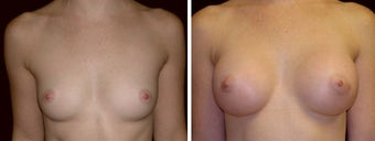 24 year old female, breast augmentation, San Francisco, California before 628385