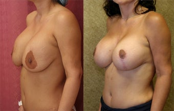 breast implant revision before 302667