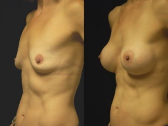 Breast augmentation, gel implants after 462159