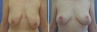 48 years old / Status post gastric bypass, breast reduction before 343927