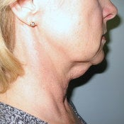 Liposuction Neck before 203953