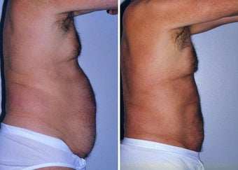 Liposuction before 330689