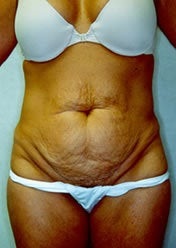 Tummy Tuck before 388163