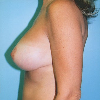 Vertical Breast Lift with Saline Implants after 270961