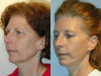 Full Facelift - Browlift, lower blepharoplasty, Lower Facelift after 137750