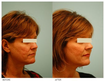Acne Scarring Correction after 136801