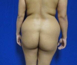 28 year old Brazilian Butt Lift before 626505