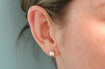 Ear Surgery (Otoplasty) after 141533