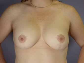 Breast Lift / Breast Augmentation after 291188
