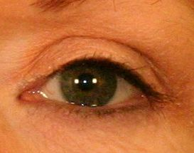 Upper Blepharoplasty (Upper Eyelids) 376859