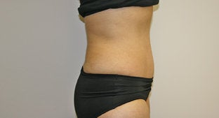 Abdominoplasty 492039