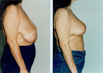 Breast Reduction before 243732