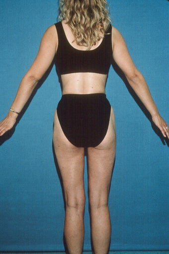 Total Body Liposculpture after 272108