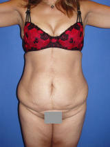 Tummy Tuck Surgery before 122975