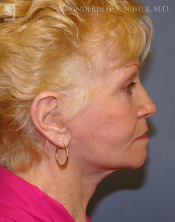 Facelift, Eyelid Surgery & Chin Implant after 501564