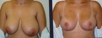 breast reduction before 370460