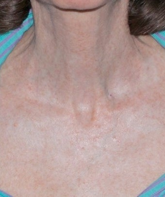 Fractional CO2 Laser Treatment after 374379