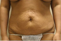 Tummy Tuck before 141467