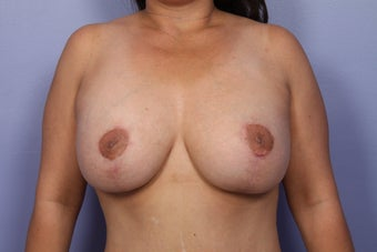 Breast Lift / Breast Implant after 301654