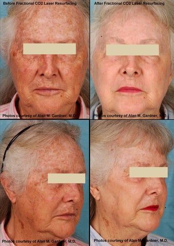 MiXto Laser Resurfacing  before 130868