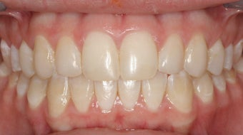 Upper Expander, Stunning Smile after 296521