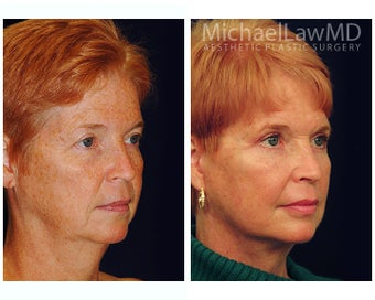 Facial Rejuvenation after 395152