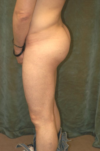 Men's Buttocks Augmentation after 518162