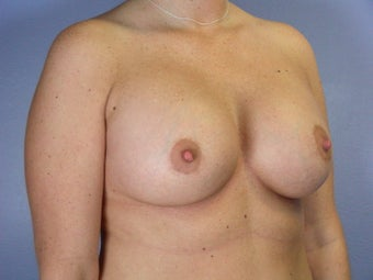 Breast Lift / Breast Augmentation  after 290988