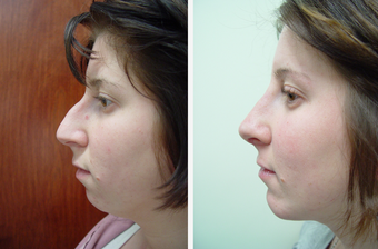 22 year old female who underwent liposuction of face and neck before 625471