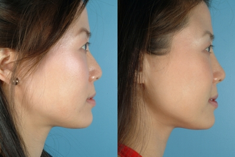 Revision Rhinoplasty before 302687