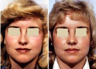 Rhinoplasty before 214825