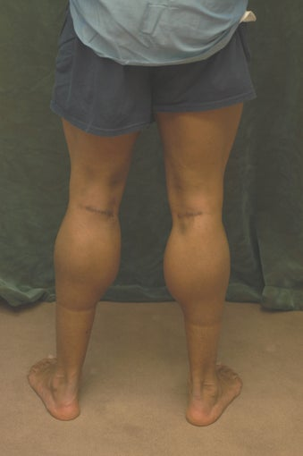 Men's Calf Augmentation  after 519058