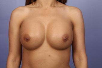 Breast Augmentation after 338717
