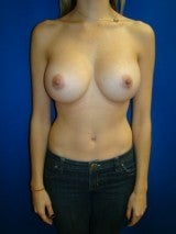 Breast Augmentation after 359693