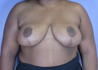Breast Reduction after 285328