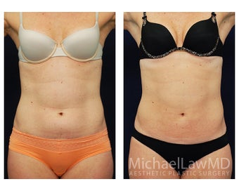 Liposuction before 495035