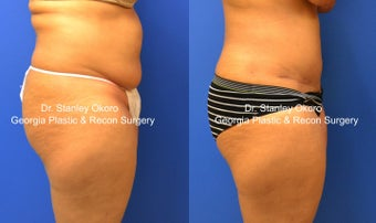 Mini Tummy Tuck after 568398