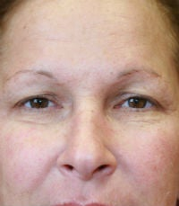 blepharoplasty before 309062