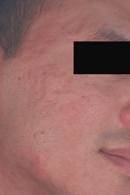 Laser Resurfacing for Acne Scars before 82980