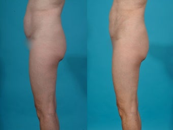Liposuction; abdomen before 458972
